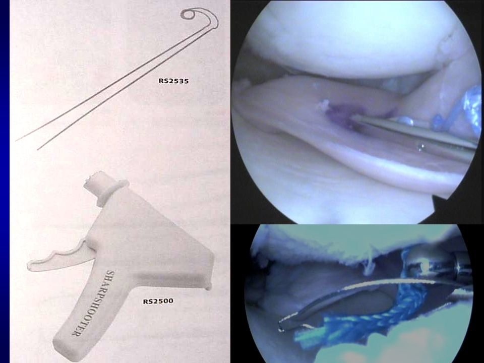 OUR SURGICAL TECHNIQUE With or without bone plugs ( )With or without bone plugs ( ) Peripheral groove for medial meniscusPeripheral groove for medial meniscus Contralateral tunnelsContralateral tunnels Posterior horn suture (Fast Fix ® MI, Sharp Shutter ® ME)Posterior horn suture (Fast Fix ® MI, Sharp Shutter ® ME) Meniscus body (Sharp Shutter ® )Meniscus body (Sharp Shutter ® ) Anterior horn suture (outside-in)Anterior horn suture (outside-in)