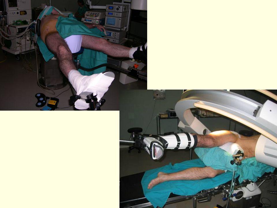 Artroscopia cadera Ver vídeo