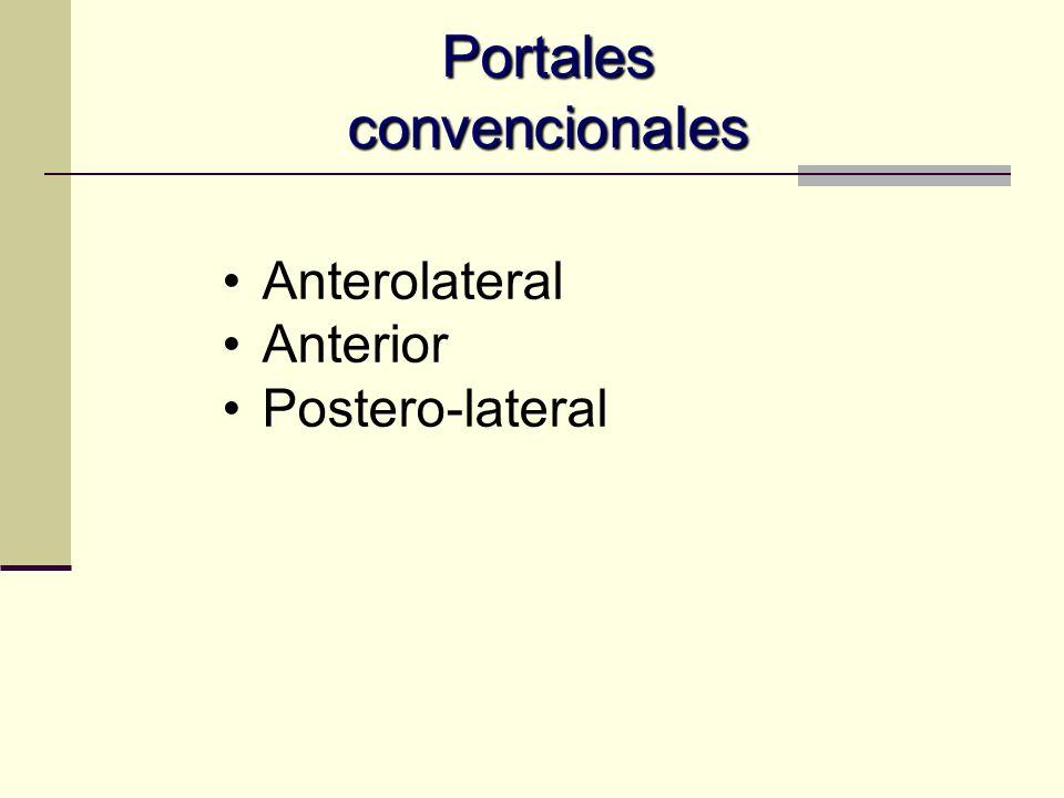 Portales periféricos periféricos Superior Anterior Accesorio AL