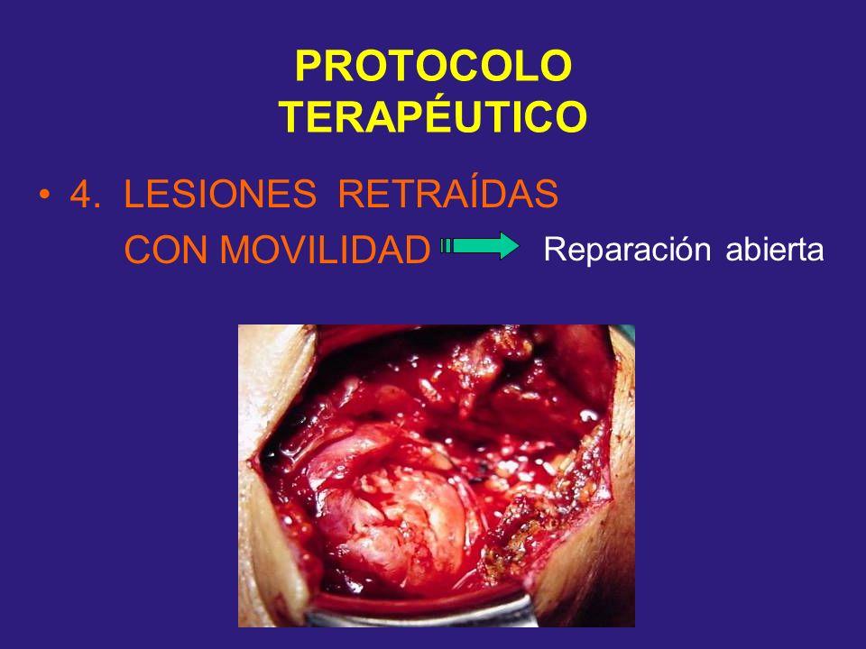 PROTOCOLO TERAPÉUTICO 4. LESIONES RETRAÍDAS CON MOVILIDAD Reparación abierta