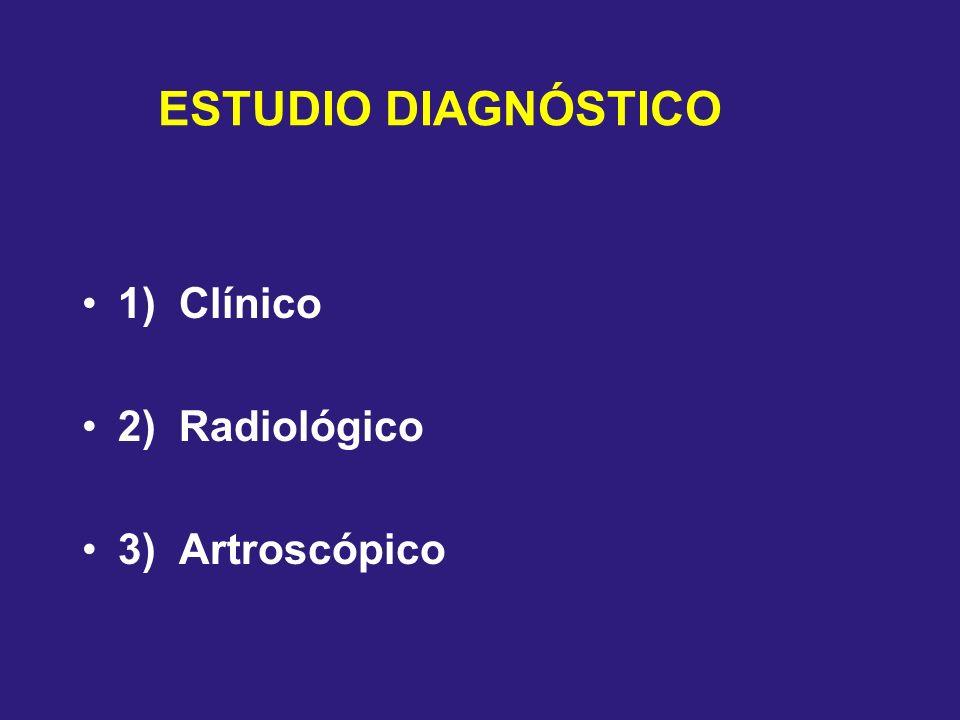 ESTUDIO DIAGNÓSTICO 1) Clínico 2) Radiológico 3) Artroscópico