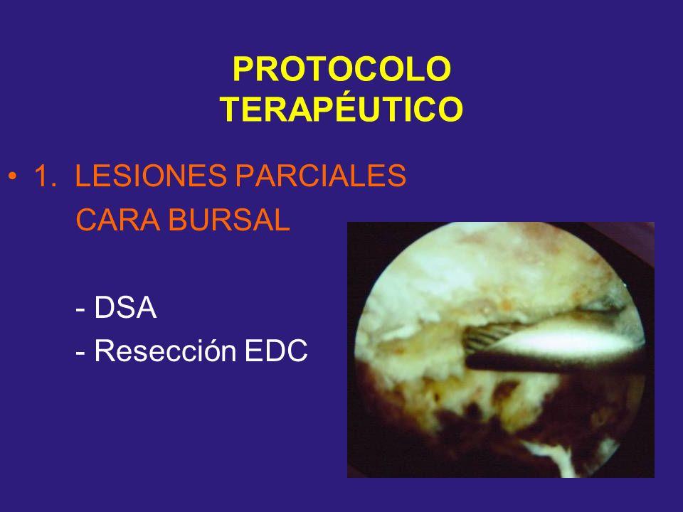 PROTOCOLO TERAPÉUTICO 1. LESIONES PARCIALES CARA BURSAL - DSA - Resección EDC