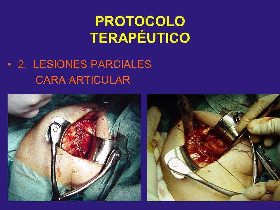 PROTOCOLO TERAPÉUTICO 2. LESIONES PARCIALES CARA ARTICULAR