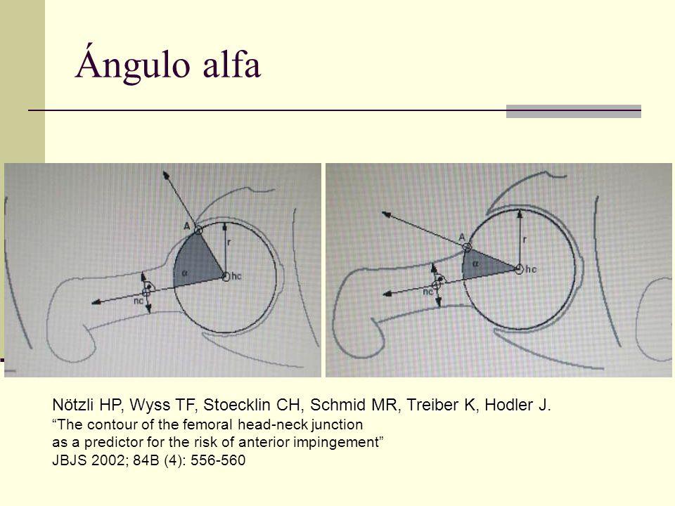 Ángulo alfa Nötzli HP, Wyss TF, Stoecklin CH, Schmid MR, Treiber K, Hodler J. The contour of the femoral head-neck junction as a predictor for the ris