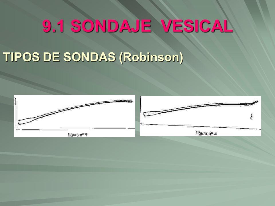 9.1 SONDAJE VESICAL TIPOS DE SONDAS (Robinson)