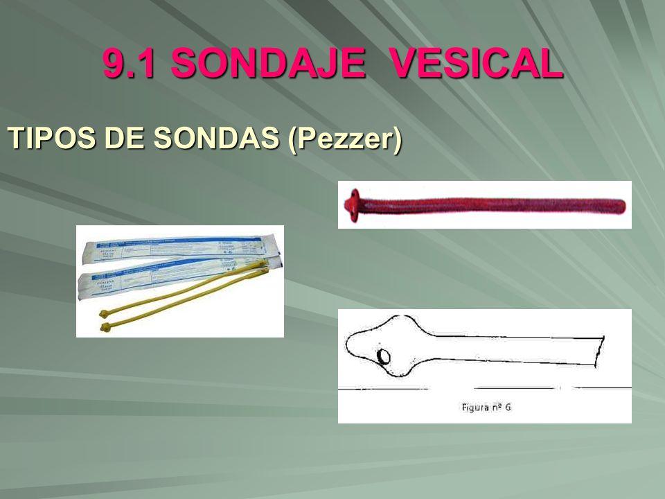 9.1 SONDAJE VESICAL TIPOS DE SONDAS (Pezzer)