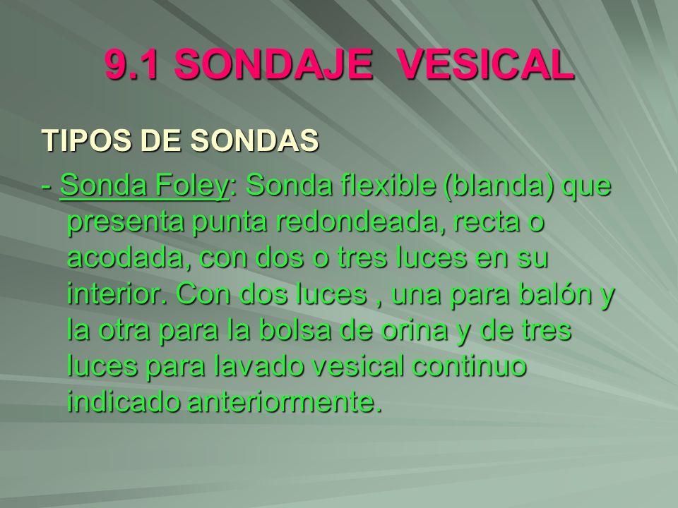 9.1 SONDAJE VESICAL TIPOS DE SONDAS - Sonda Foley: Sonda flexible (blanda) que presenta punta redondeada, recta o acodada, con dos o tres luces en su