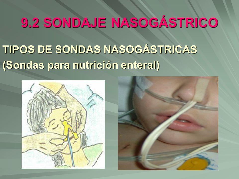 9.2 SONDAJE NASOGÁSTRICO TIPOS DE SONDAS NASOGÁSTRICAS (Sondas para nutrición enteral)