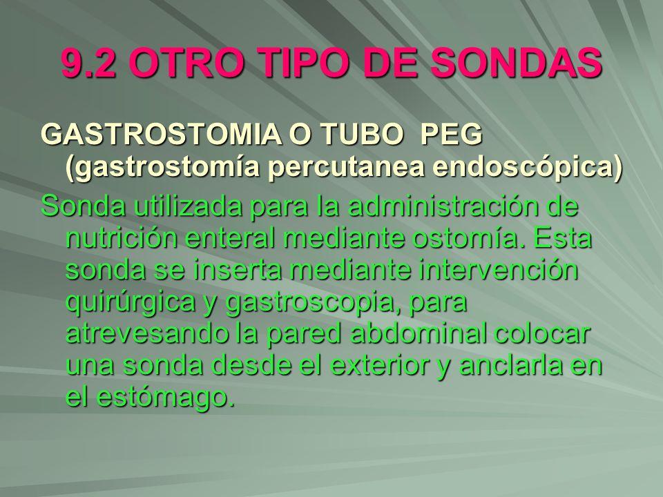 9.2 OTRO TIPO DE SONDAS GASTROSTOMIA O TUBO PEG (gastrostomía percutanea endoscópica) Sonda utilizada para la administración de nutrición enteral medi
