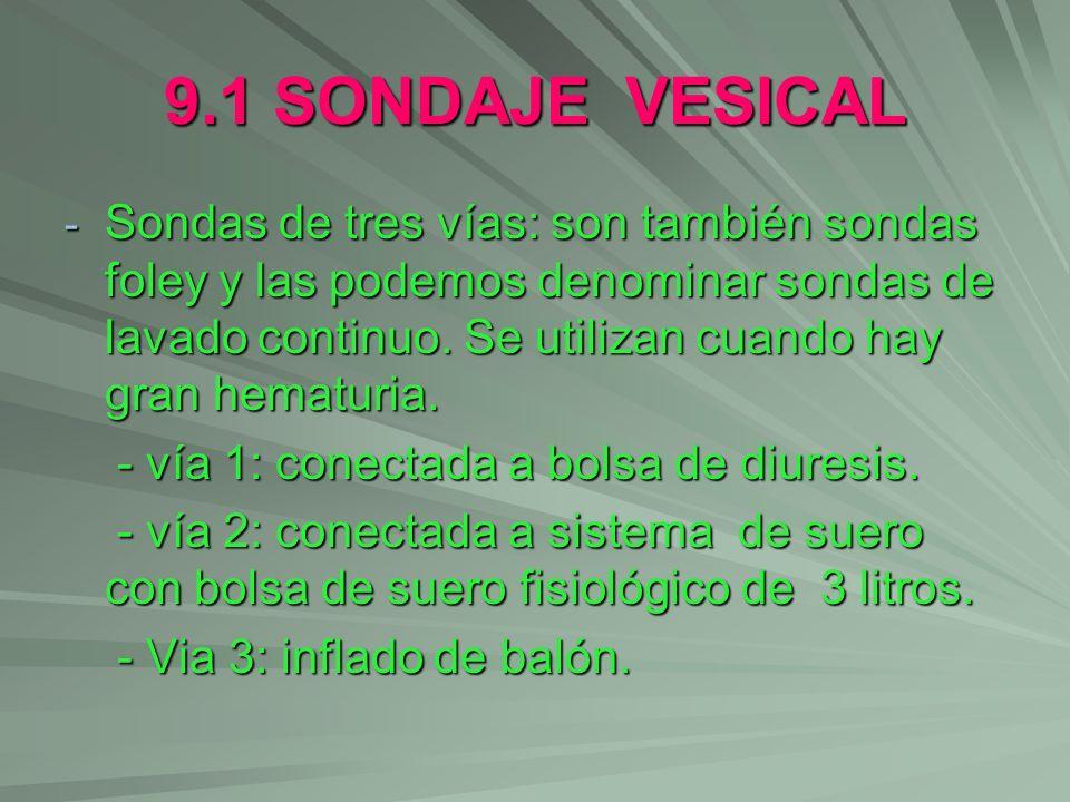 9.1 SONDAJE VESICAL - Sondas de tres vías: son también sondas foley y las podemos denominar sondas de lavado continuo. Se utilizan cuando hay gran hem