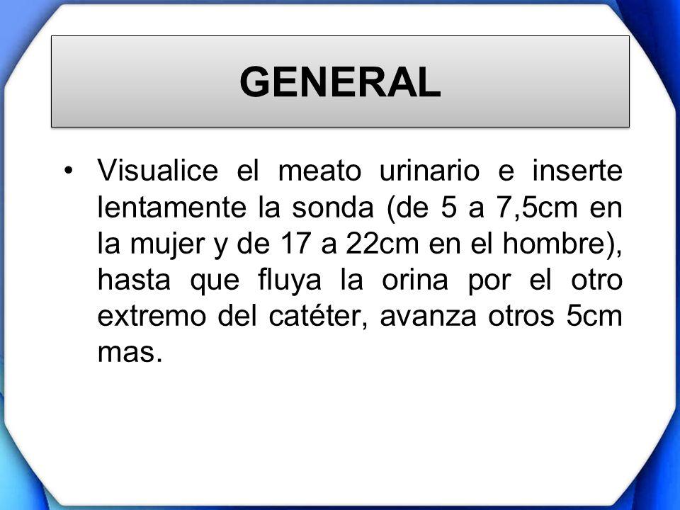 GENERAL Visualice el meato urinario e inserte lentamente la sonda (de 5 a 7,5cm en la mujer y de 17 a 22cm en el hombre), hasta que fluya la orina por
