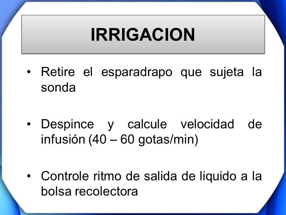 IRRIGACION Retire el esparadrapo que sujeta la sonda Despince y calcule velocidad de infusión (40 – 60 gotas/min) Controle ritmo de salida de liquido