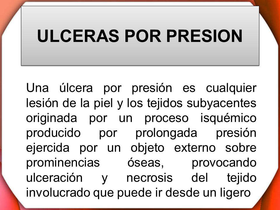 ULCERAS POR PRESION Una úlcera por presión es cualquier lesión de la piel y los tejidos subyacentes originada por un proceso isquémico producido por p
