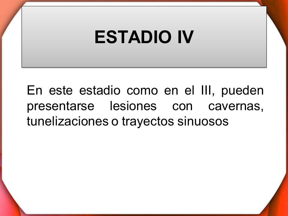 ESTADIO IV En este estadio como en el III, pueden presentarse lesiones con cavernas, tunelizaciones o trayectos sinuosos