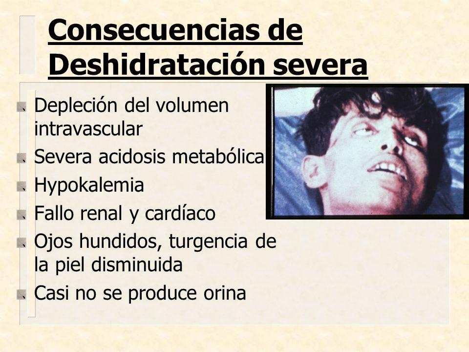 Consecuencias de Deshidratación severa Depleción del volumen intravascular Severa acidosis metabólica Hypokalemia Fallo renal y cardíaco Ojos hundidos