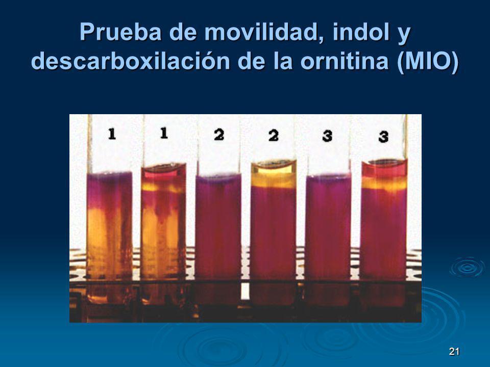 21 Prueba de movilidad, indol y descarboxilación de la ornitina (MIO)