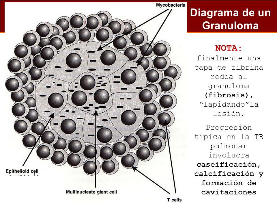 Diagrama de un Granuloma NOTA: finalmente una capa de fibrina rodea al granuloma (fibrosis), lapidandola lesión. Progresión típica en la TB pulmonar i