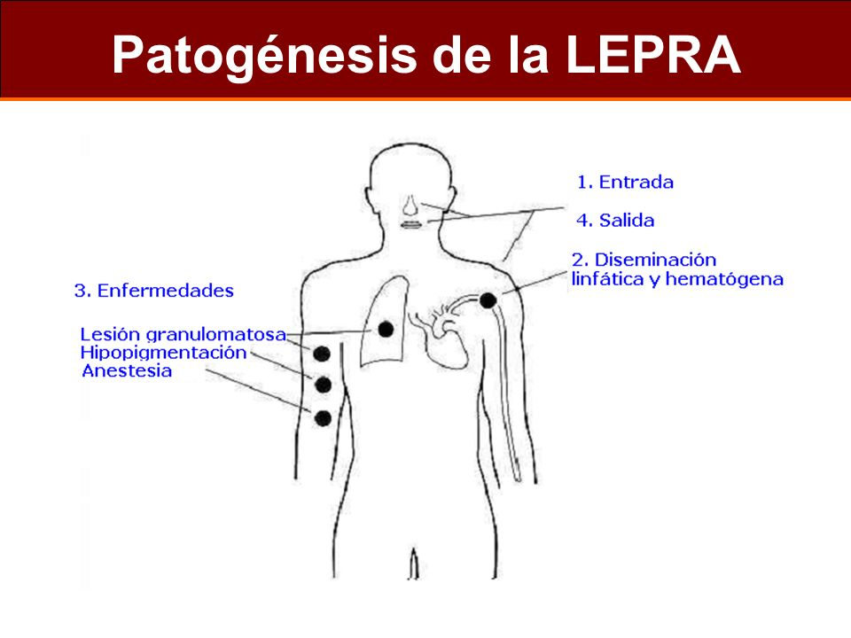 Patogénesis de la LEPRA
