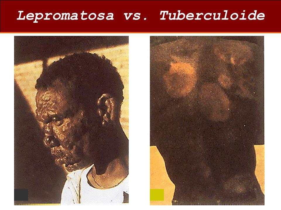 Lepromatosa vs. Tuberculoide