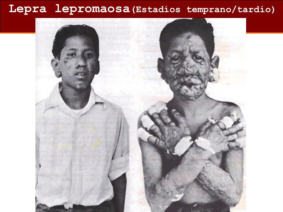 Lepra lepromaosa (Estadíos temprano/tardío)