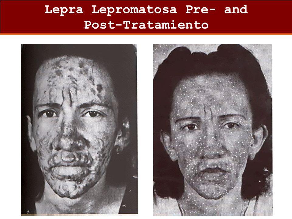 Lepra Lepromatosa Pre- and Post-Tratamiento