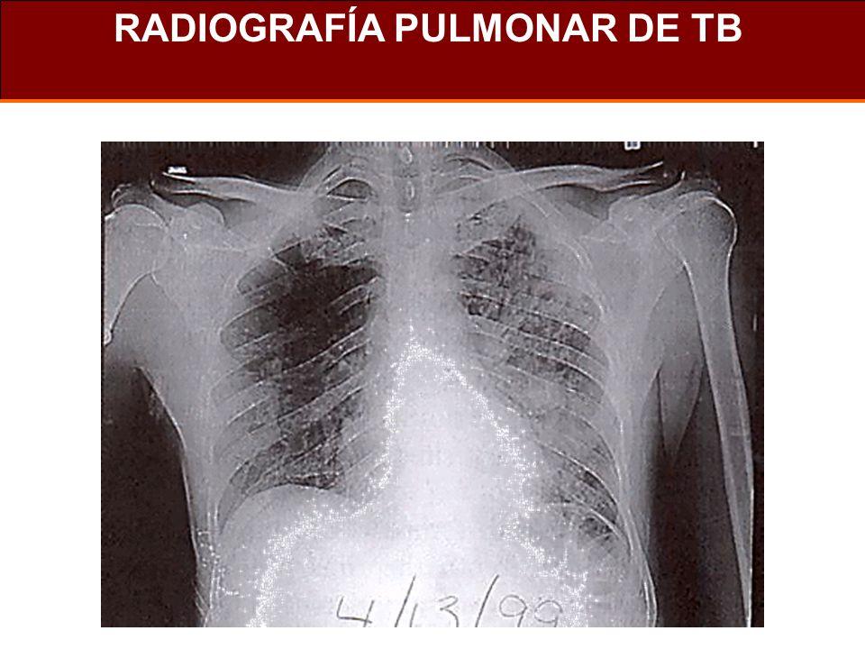 Tasas estimadas de TBC 25 - 49 50 - 99 100 - 300 0 - 9 10 - 24 300 or more No estimate Rate per 100 000