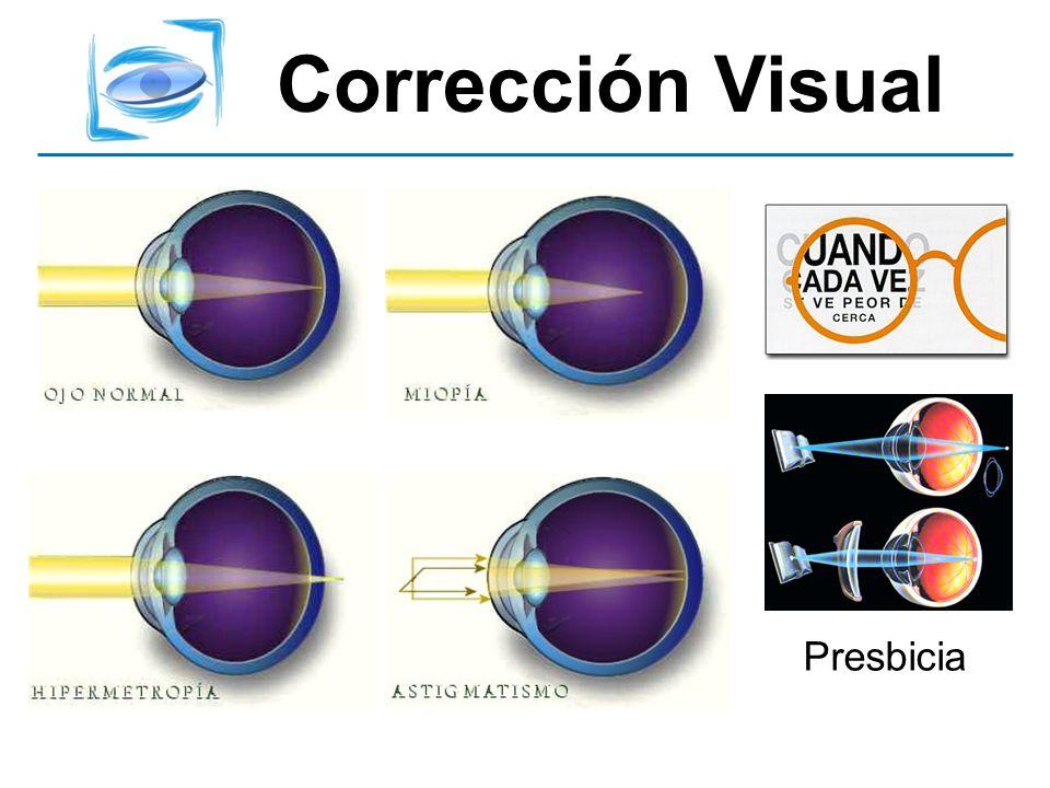 Corrección Visual NO usamos computadoras