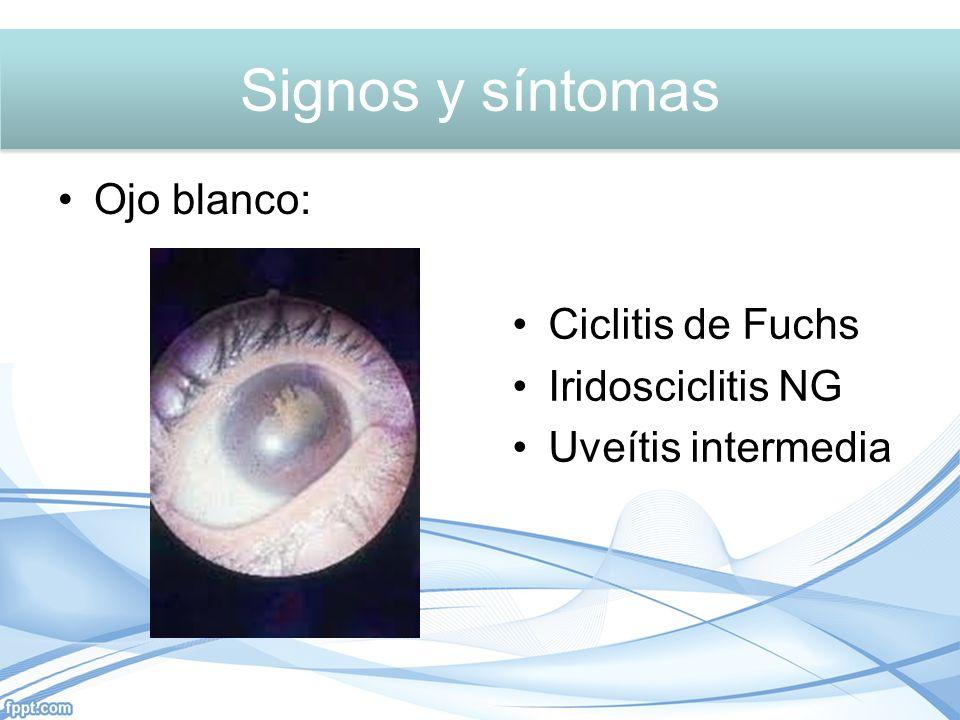 Ojo blanco: Ciclitis de Fuchs Iridosciclitis NG Uveítis intermedia Signos y síntomas