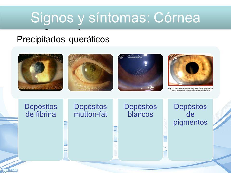 Precipitados queráticos Signos y síntomas: Córnea