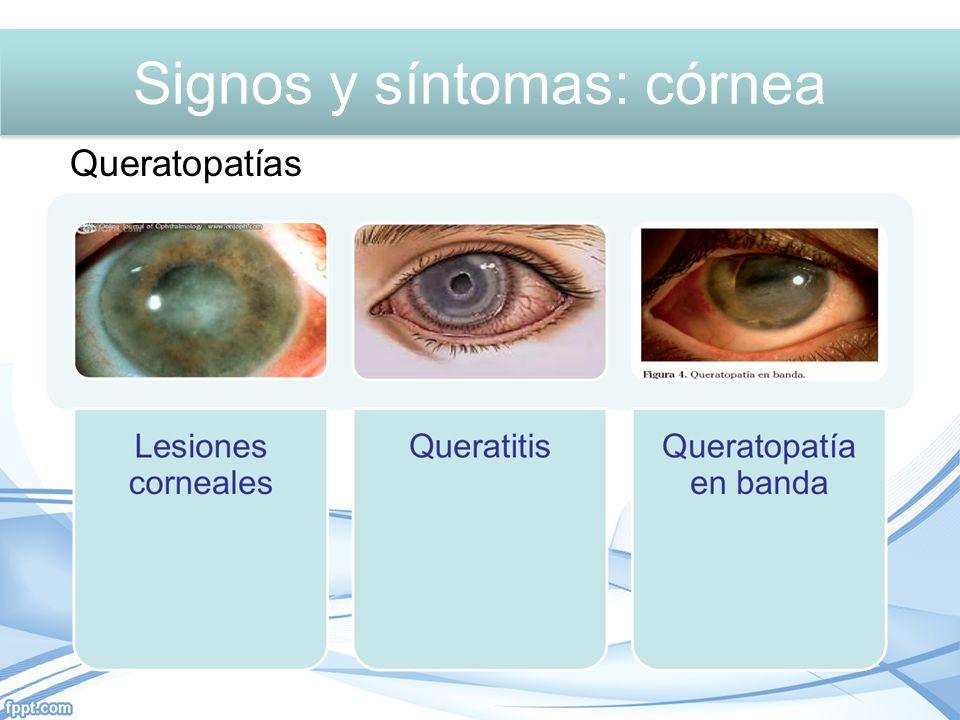 Queratopatías Signos y síntomas: córnea