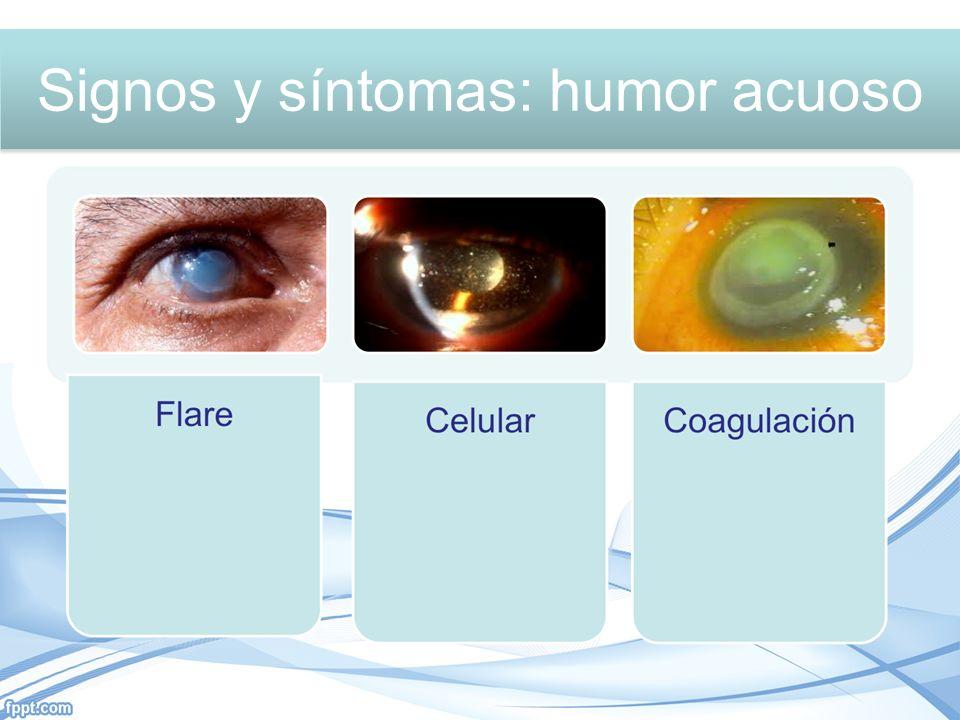 Signos y síntomas: Humor acuoso Signos y síntomas: humor acuoso