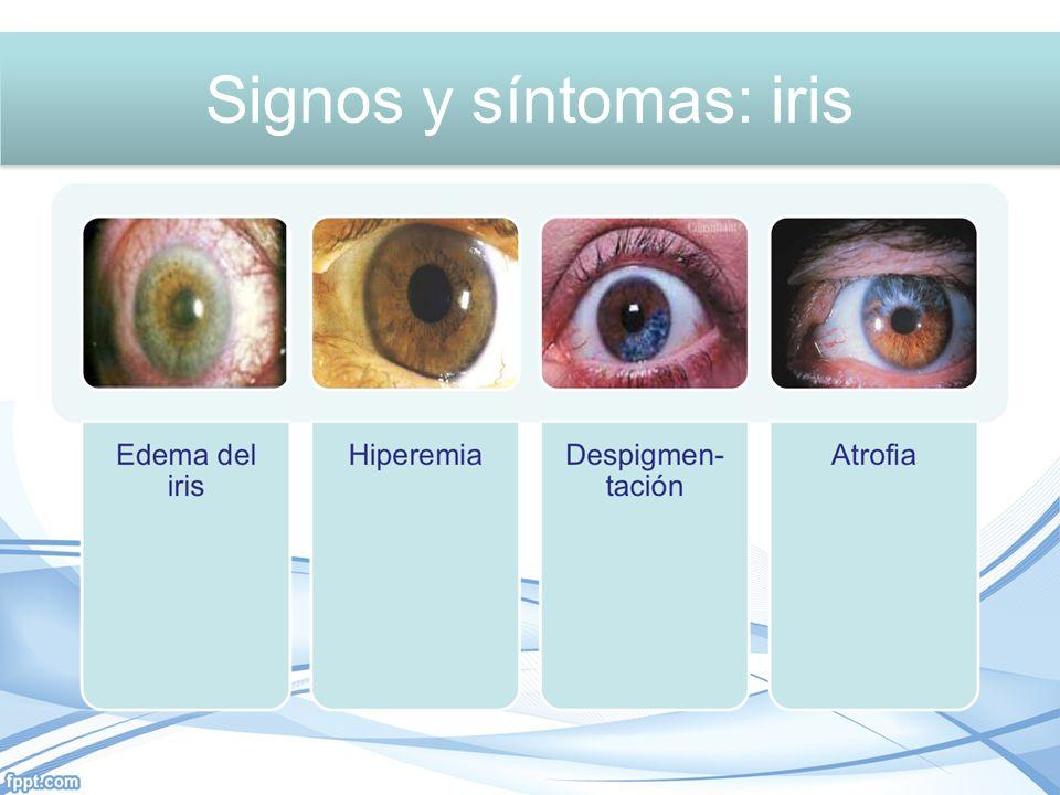 Signos y síntomas: Iris Signos y síntomas: iris