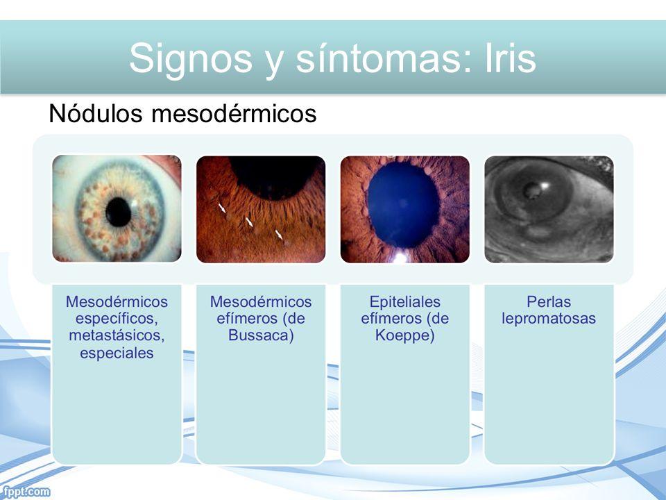 Signos y síntomas: Iris Nódulos mesodérmicos Signos y síntomas: Iris