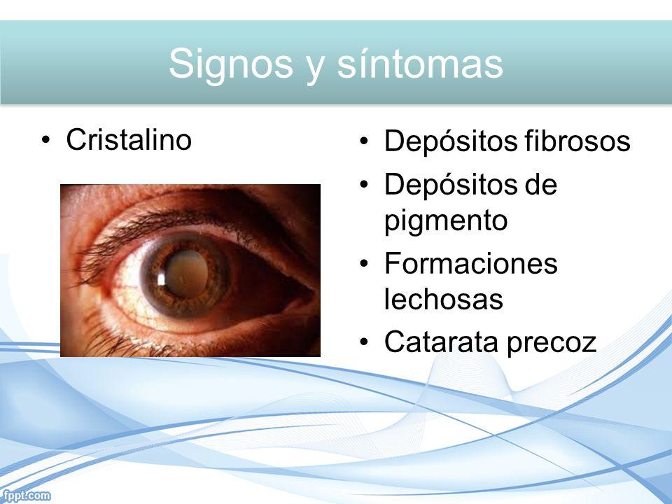 Signos y síntomas Cristalino Depósitos fibrosos Depósitos de pigmento Formaciones lechosas Catarata precoz Signos y síntomas