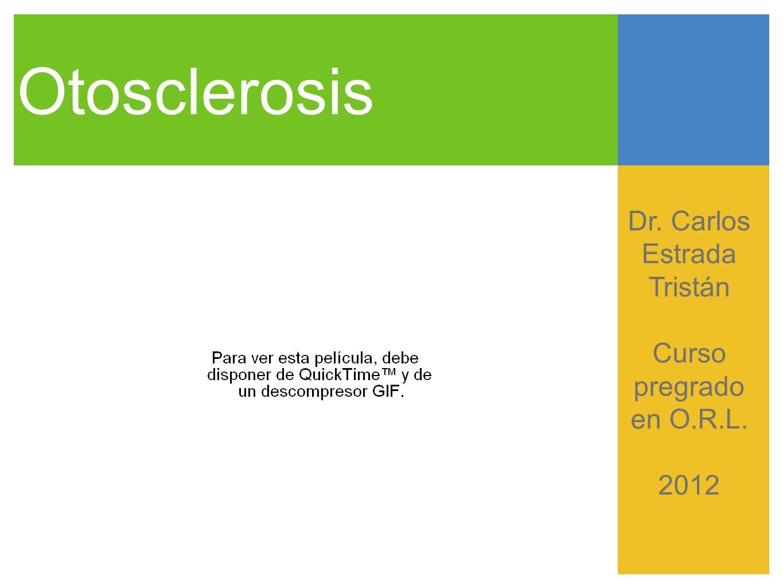 Otosclerosis Generalidades Enfermedad ósea que afecta la cápsula ótica.
