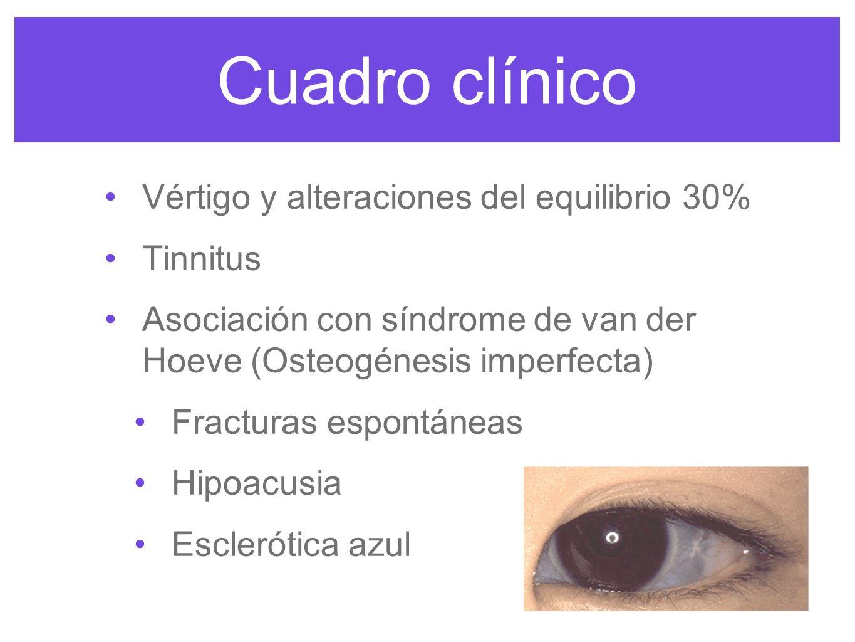 Cuadro clínico Vértigo y alteraciones del equilibrio 30% Tinnitus Asociación con síndrome de van der Hoeve (Osteogénesis imperfecta) Fracturas espontá