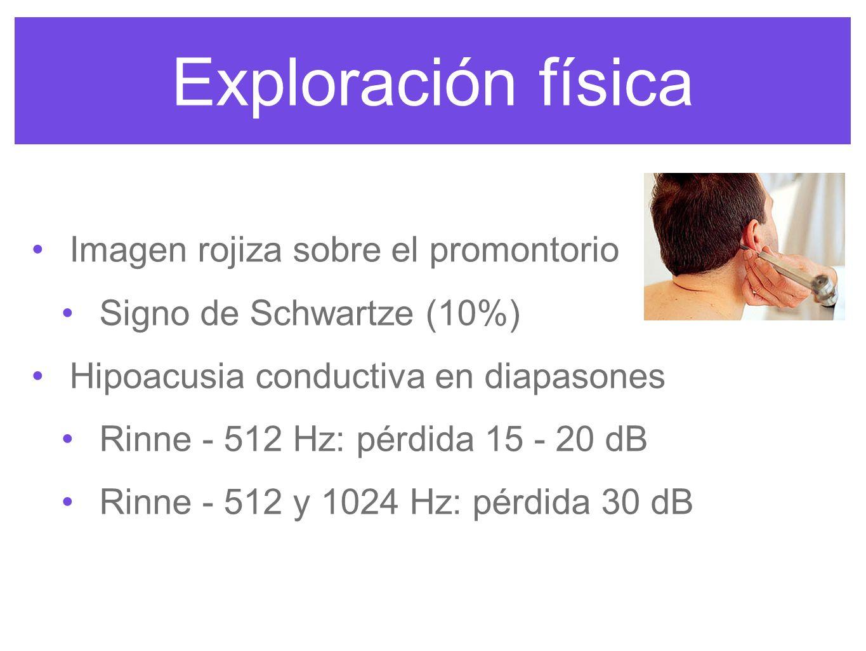 Exploración física Imagen rojiza sobre el promontorio Signo de Schwartze (10%) Hipoacusia conductiva en diapasones Rinne - 512 Hz: pérdida 15 - 20 dB Rinne - 512 y 1024 Hz: pérdida 30 dB