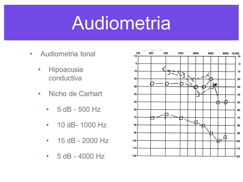 Audiometria Audiometria tonal Hipoacusia conductiva Nicho de Carhart 5 dB - 500 Hz 10 dB- 1000 Hz 15 dB - 2000 Hz 5 dB - 4000 Hz