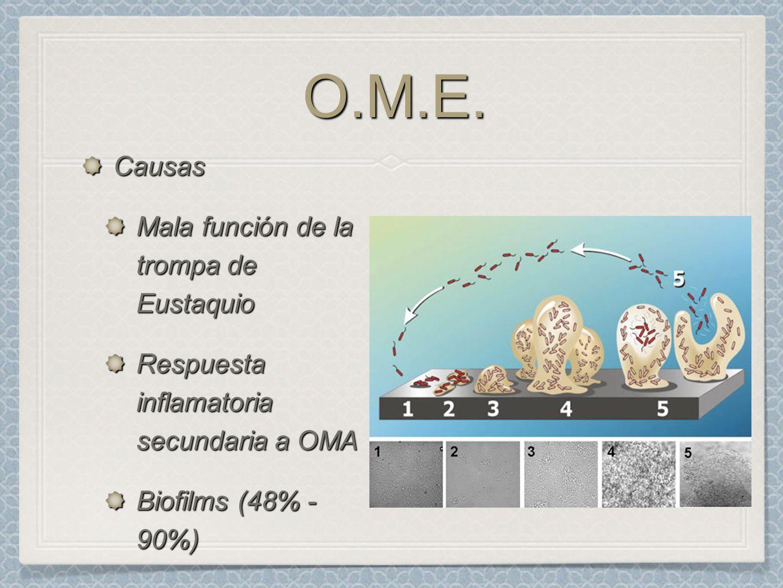 O.M.E.O.M.E. Causas Mala función de la trompa de Eustaquio Respuesta inflamatoria secundaria a OMA Biofilms (48% - 90%)