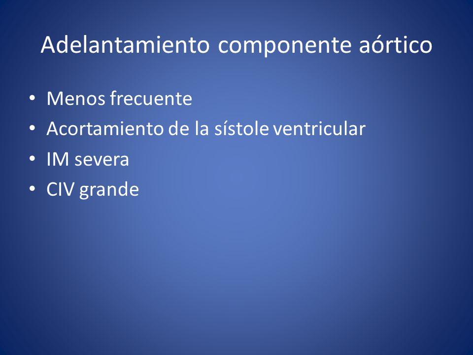 Adelantamiento componente aórtico Menos frecuente Acortamiento de la sístole ventricular IM severa CIV grande