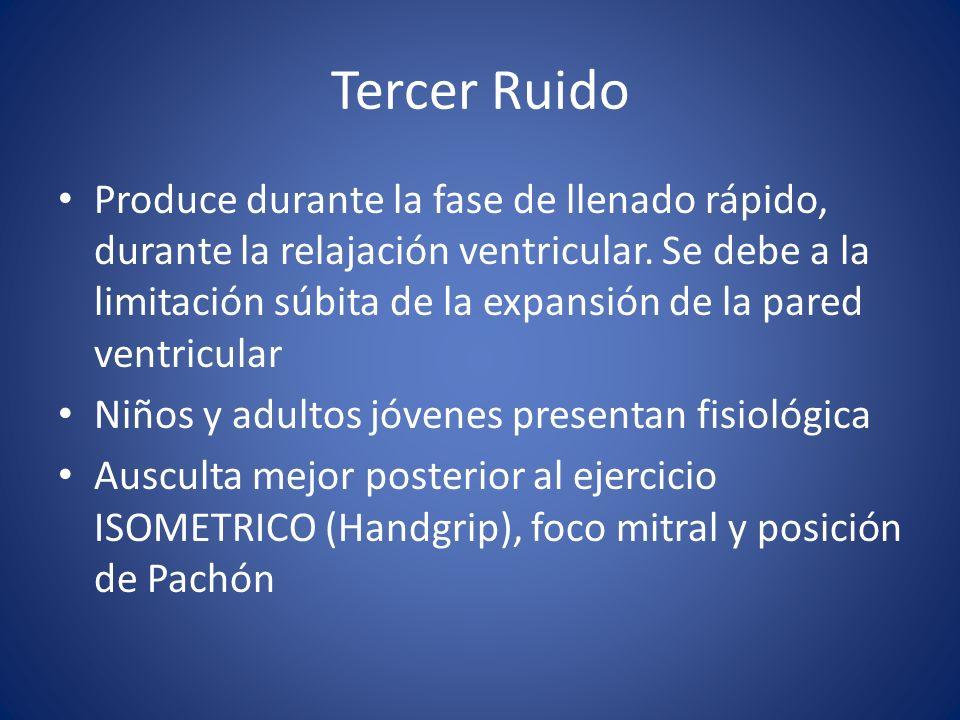 Tercer Ruido Produce durante la fase de llenado rápido, durante la relajación ventricular.