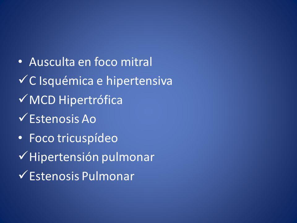 Ausculta en foco mitral C Isquémica e hipertensiva MCD Hipertrófica Estenosis Ao Foco tricuspídeo Hipertensión pulmonar Estenosis Pulmonar