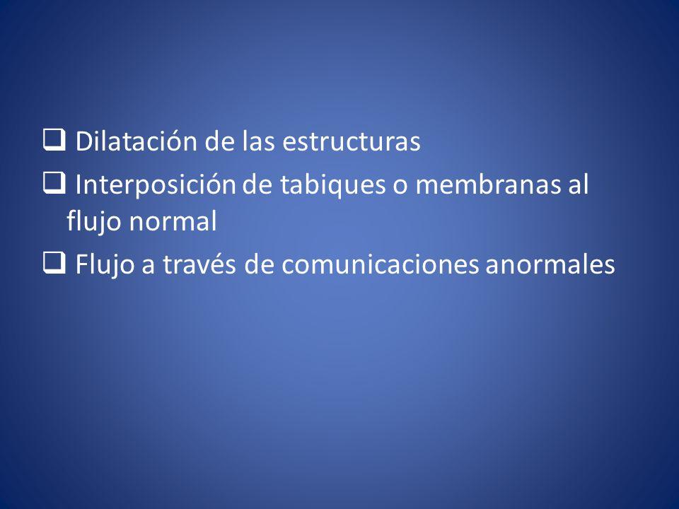 Dilatación de las estructuras Interposición de tabiques o membranas al flujo normal Flujo a través de comunicaciones anormales