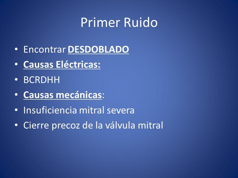 Primer Ruido Encontrar DESDOBLADO Causas Eléctricas: BCRDHH Causas mecánicas: Insuficiencia mitral severa Cierre precoz de la válvula mitral