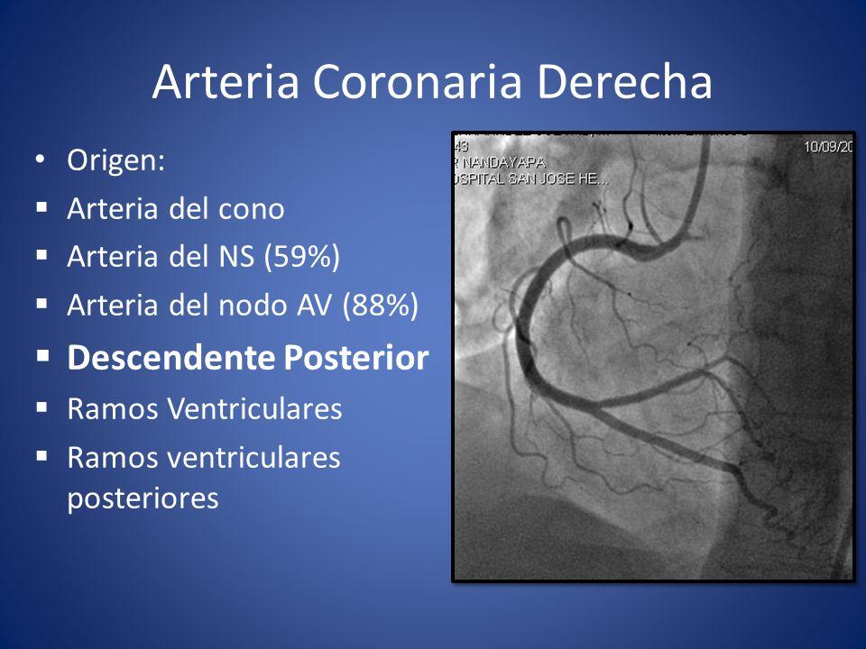 Arteria Coronaria Derecha Origen: Arteria del cono Arteria del NS (59%) Arteria del nodo AV (88%) Descendente Posterior Ramos Ventriculares Ramos vent