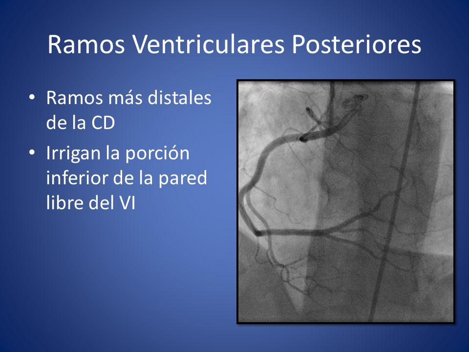 Ramos Ventriculares Posteriores Ramos más distales de la CD Irrigan la porción inferior de la pared libre del VI