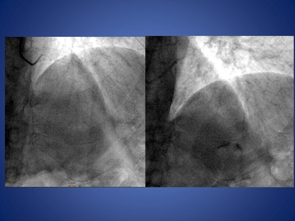 Anomalías ECG compatibles con isquemia Asociado afección del sistema de conducción Isquemia Infarto Muerte súbita (ejercicio físico intenso) Sindromes Coronarios Agudos Joan Llevadot.