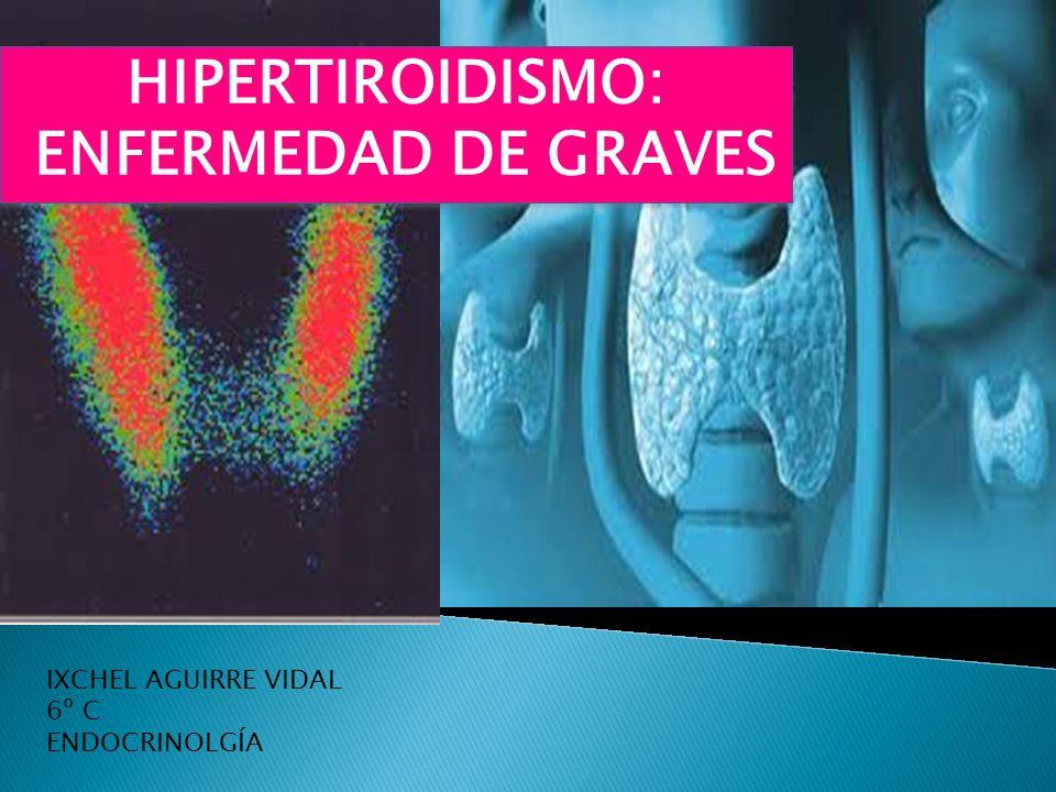 HIPERTIROIDISMO: ENFERMEDAD DE GRAVES HIPERTIROIDISMO: ENFERMEDAD DE GRAVES IXCHEL AGUIRRE VIDAL 6º C ENDOCRINOLGÍA