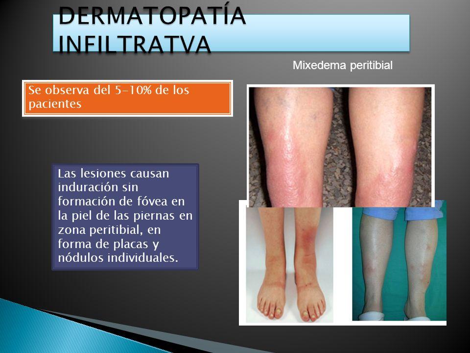 Se observa del 5-10% de los pacientes Las lesiones causan induración sin formación de fóvea en la piel de las piernas en zona peritibial, en forma de