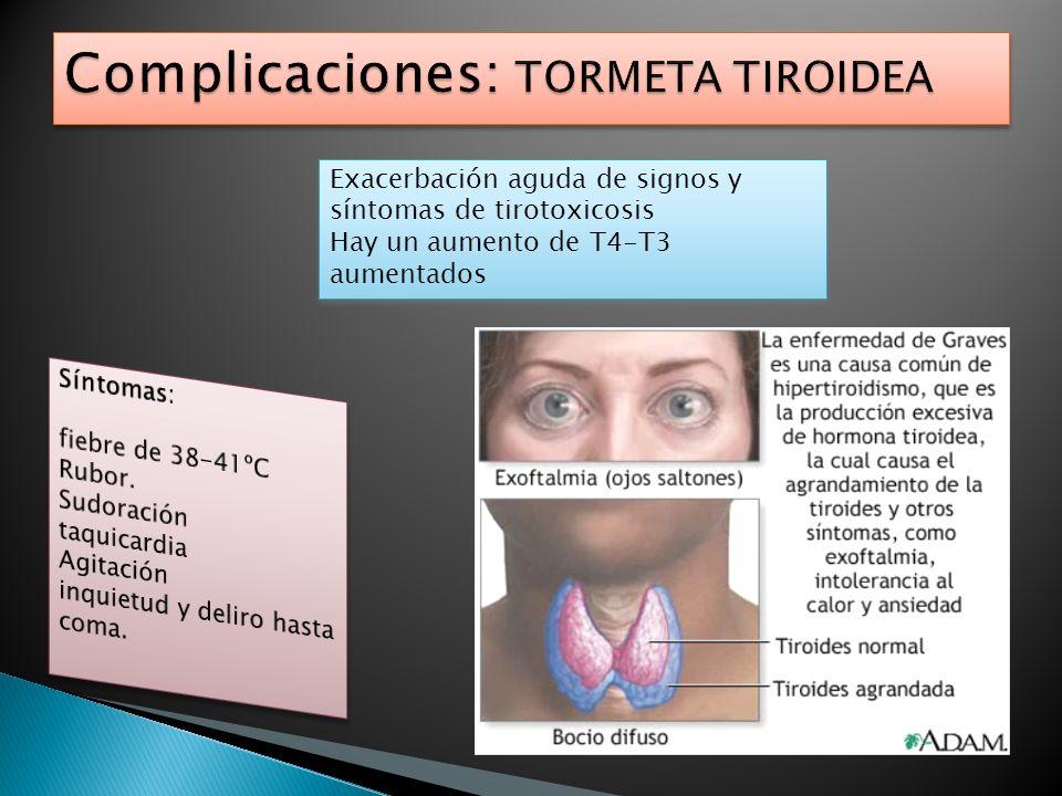 Exacerbación aguda de signos y síntomas de tirotoxicosis Hay un aumento de T4-T3 aumentados Exacerbación aguda de signos y síntomas de tirotoxicosis H